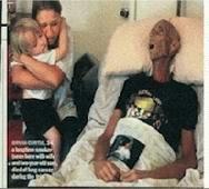 Cette image en fera fuir certains, mais c'est la réalité : fumer tue !