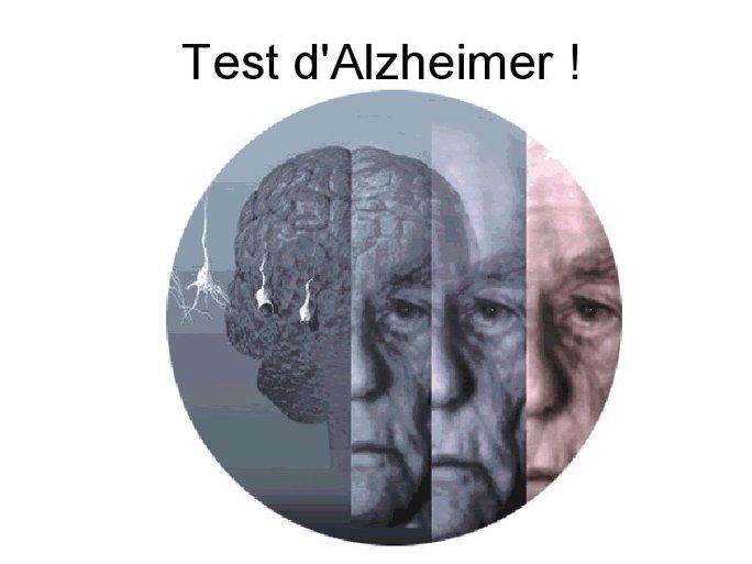 Test d'Alzheimer