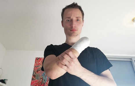 Antoine, main arrachée à Bordeaux
