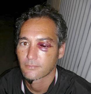 Cédric, éborgné à la Réunion