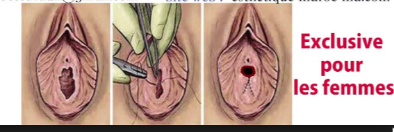 Se refaire une virginité ? Il y a des spécialistes pour cela !