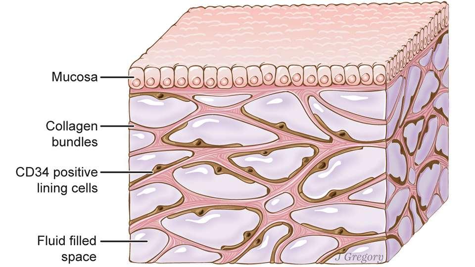 L'interstitium, ici sous une muqueuse (mucosa), comprend des compartiments interconnectés, emplis de liquide, soutenus par un réseau de protéines (collagen). Des cellules tapissent les espaces. © Jill Gregory,