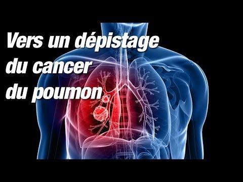 Cancer du poumon : une vaste étude contredit la HAS sur l'intérêt d'un dépistage systématique