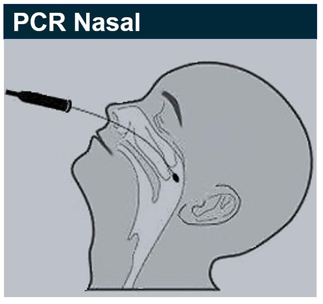 PCR, antigéniques ou sérologiques, tout comprendre sur les tests Covid-19