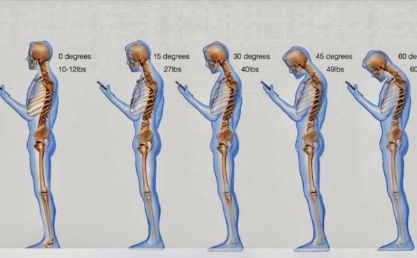 TMS, douleurs cervicales, tendinites… évitez que vos smartphones ne vous détruisent physiquement